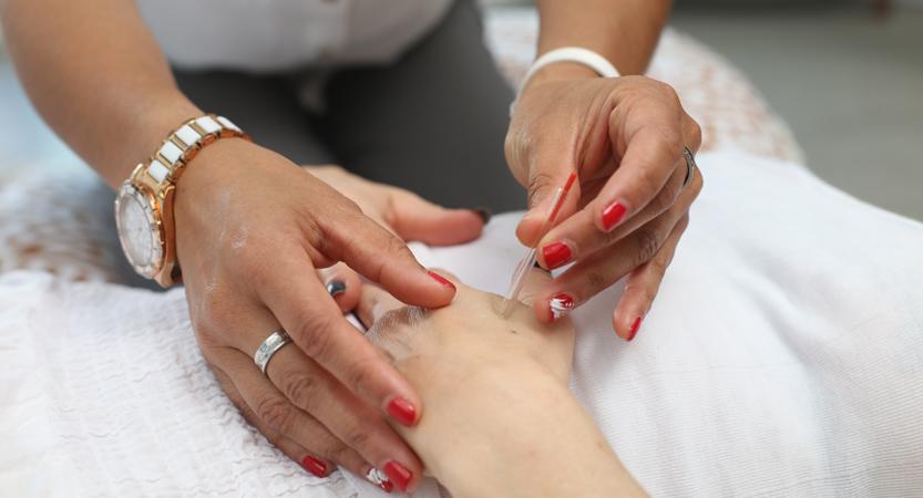 L'Acupuncture régule le système immunitaire et apprivoise les réponses inflammatoires
